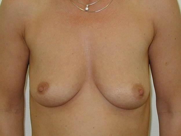 http://plastika-chirurgie.cz/media/prsa/a.jpg