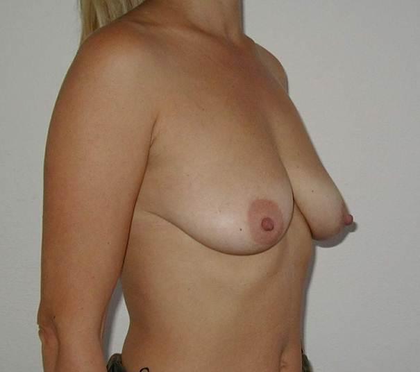 http://plastika-chirurgie.cz/media/prsa/c.jpg