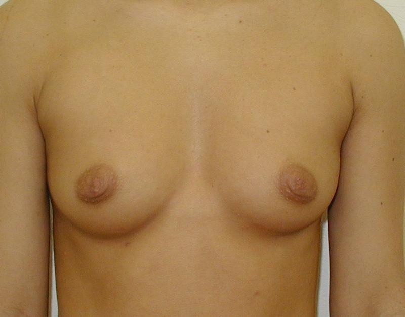 http://plastika-chirurgie.cz/media/prsa/d1.jpg