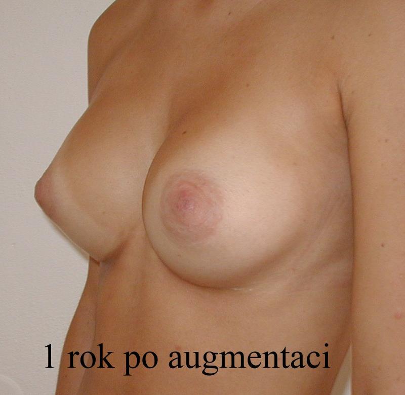 http://plastika-chirurgie.cz/media/prsa/d3.jpg