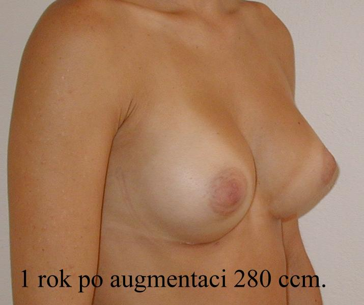 http://plastika-chirurgie.cz/media/prsa/d4.jpg