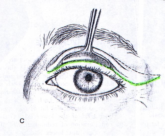 http://plastika-chirurgie.cz/media/vicka/1.jpg