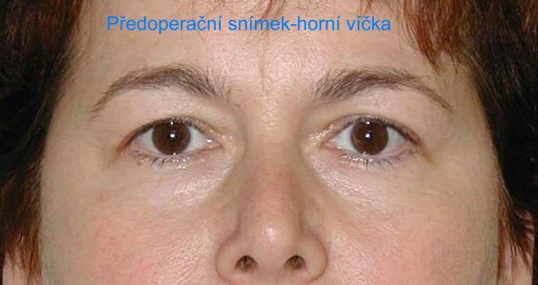 http://plastika-chirurgie.cz/media/vicka/a1.jpg