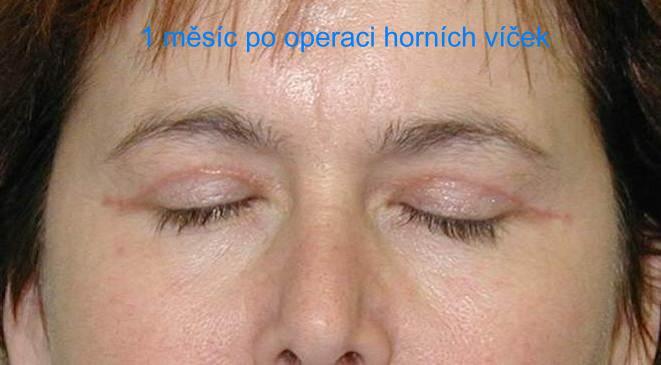 http://plastika-chirurgie.cz/media/vicka/a2.jpg