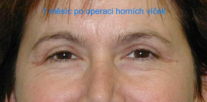 http://plastika-chirurgie.cz/media/vicka/a3.jpg