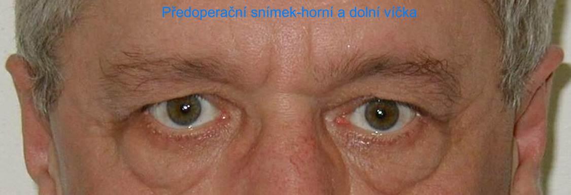 http://plastika-chirurgie.cz/media/vicka/b1.jpg
