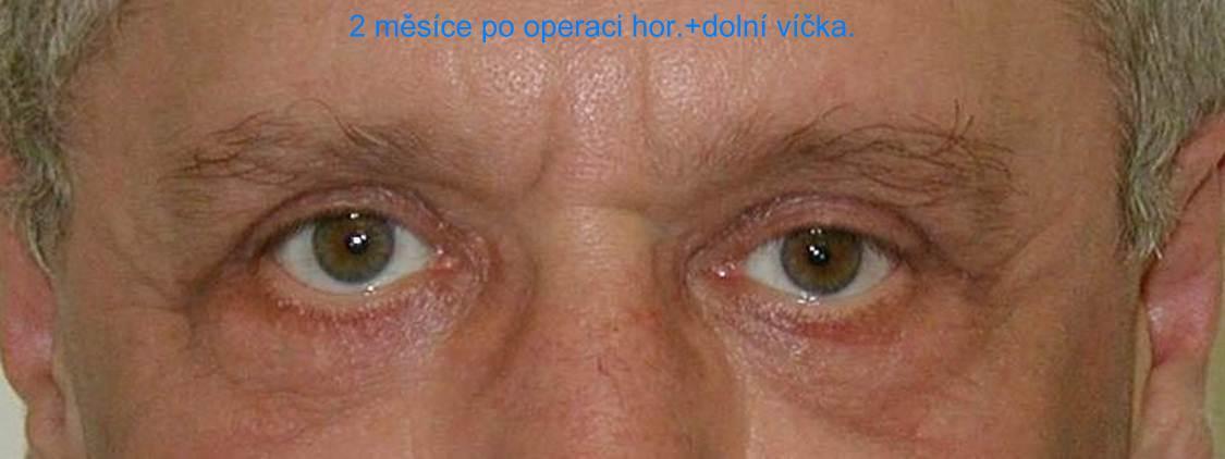 http://plastika-chirurgie.cz/media/vicka/b2.jpg