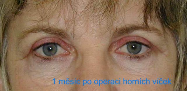http://plastika-chirurgie.cz/media/vicka/c2.jpg
