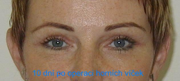 http://plastika-chirurgie.cz/media/vicka/q1.jpg