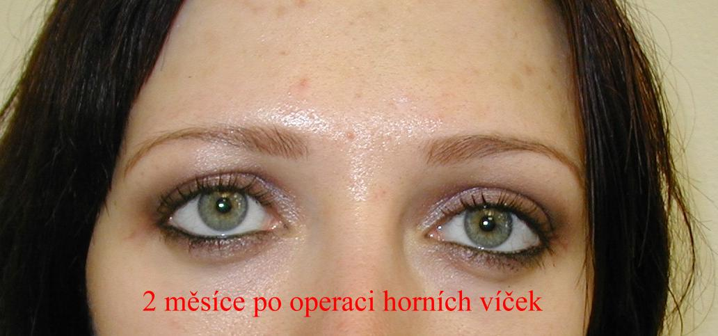 http://plastika-chirurgie.cz/media/vicka/z1.jpg