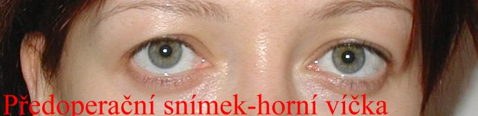 http://plastika-chirurgie.cz/media/vicka/z2.jpg